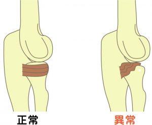 橈骨と輪状靭帯