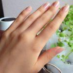 指先のひび割れを素早く治す方法とは?もうこれで痛くない!