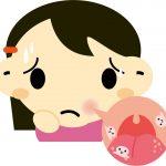 ビタミンが不足すると口内炎になるの?他にどんな病気になるの?