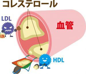 血管とコレステロール
